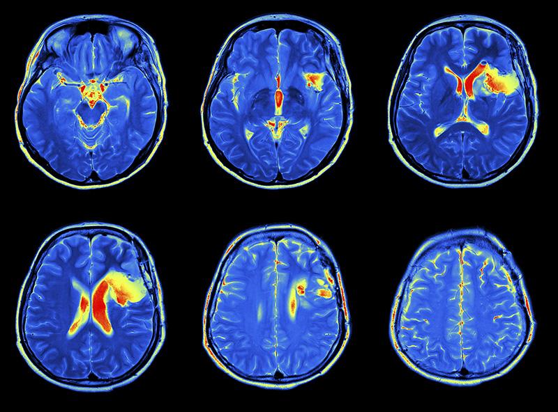 Brain Awareness Night: MRI scan image of brain