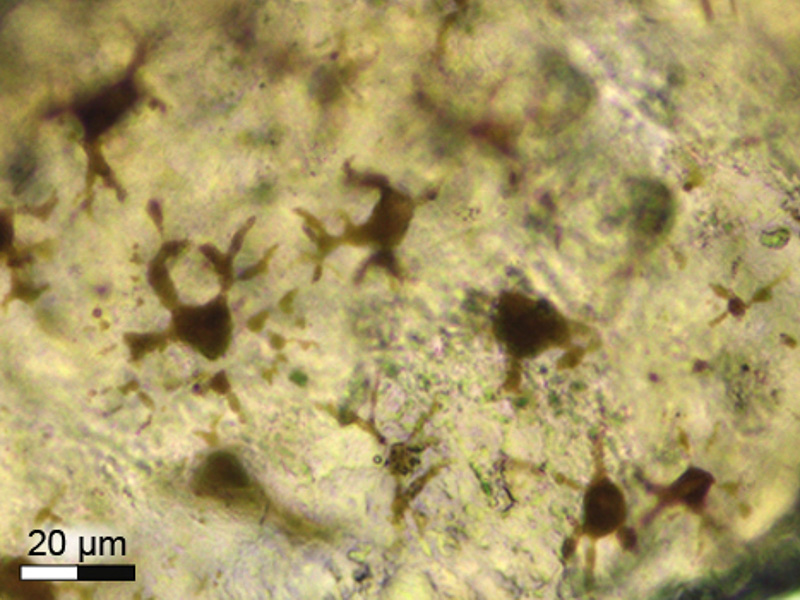 One hundred and eighty-million-year-old pigment cells (melanophores).